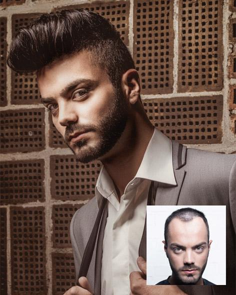 Photo Institut Hairfax Cambrai